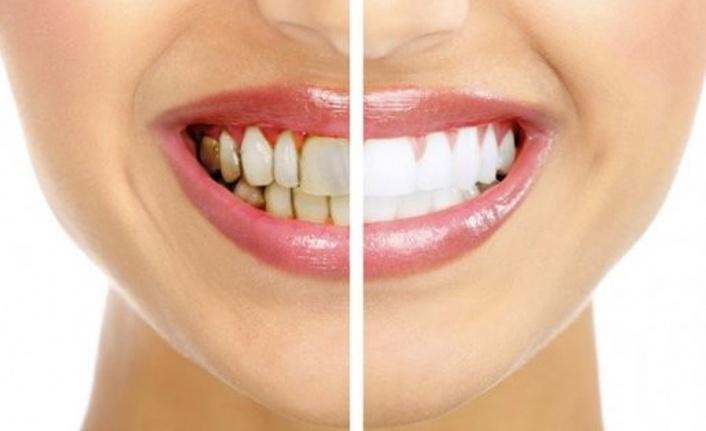 Evinizde Uygulayabileceğiniz Doğal Diş Beyazlatma Yöntemleri