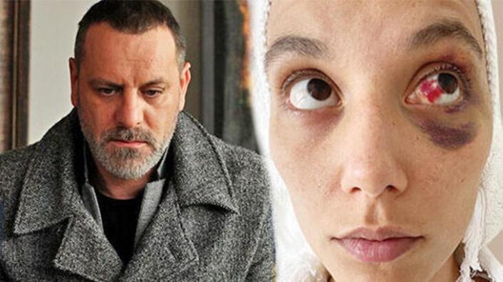 Ozan Güven'e kadına şiddetten hapis istemi! Deniz Bulutsuz'dan açıklama