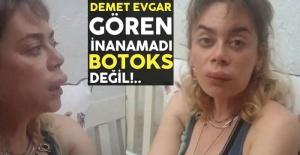 Demet Evgar'ı görenler şoke oldu! Botoks yaptırdı sanmayın!